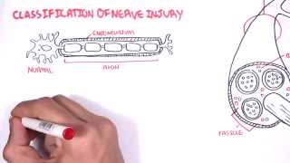 Neurology - Nerve Damage and Regeneration