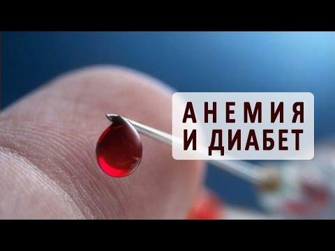 Анемия при сахарном диабете