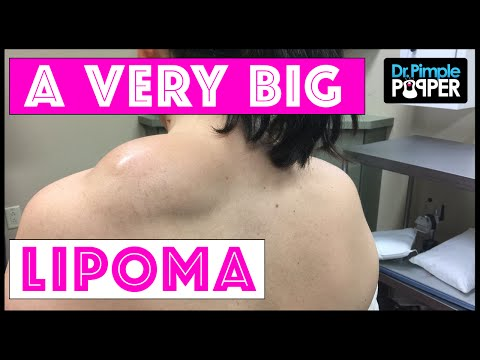 Excision of a Large Lipoma on the Shoulder using Tumescent T