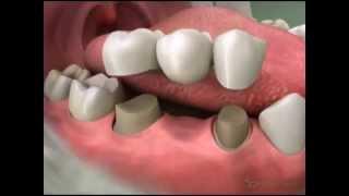 River Road Dental: Bridges