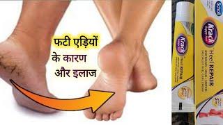 Krack Heel Repair Cream Review in hindi / Treatment of Dry and Cracked Heels (In Hindi ) Crack heels