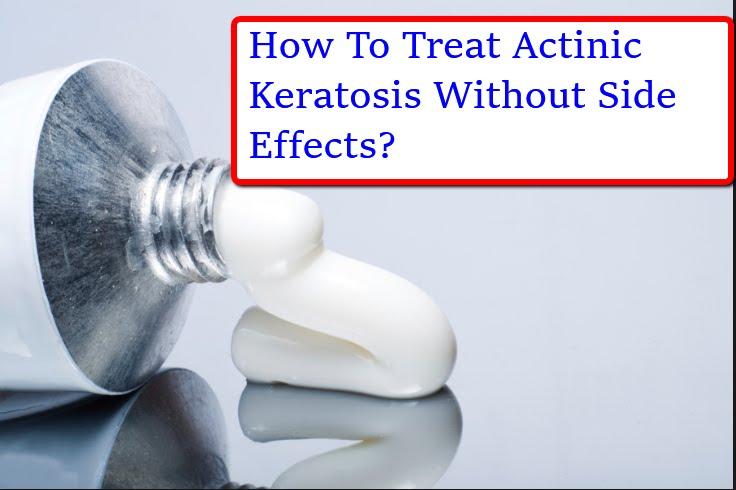 How To Treat Actinic Keratosis? - Best Actinic Keratosis Treatment