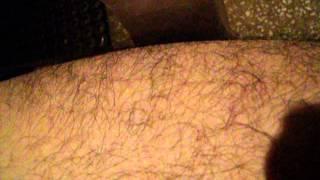Tortures - Microcontracture/spasme musculaire à la cuisse