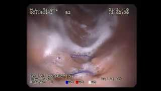 Pentax K Series Gastroscope Video Example Thumbnail