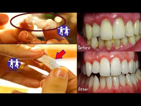 Rub 2 drops on your Gums and your teeth and see what happend, you will never Go to a dentist Again