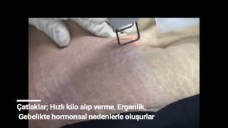 Lazer Cilt Çatlakları Tedavisi