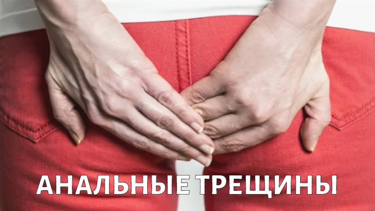 Как лечить АНАЛЬНЫЕ трещины?
