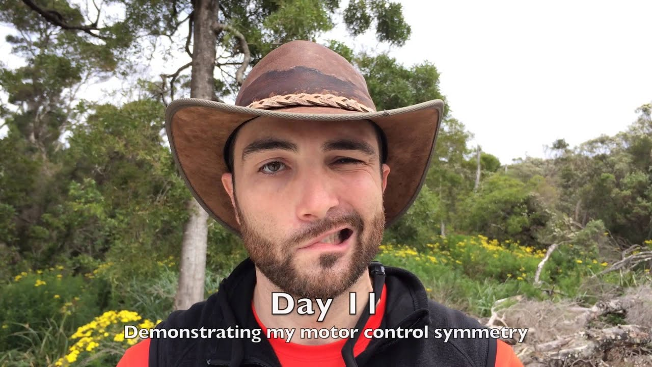 my journey to recovering from bell's palsy - youtube, Cephalic Vein