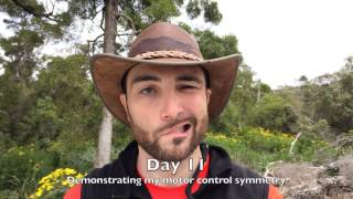 My Journey to Recovering from Bell's Palsy(CC: English, Español (Spanish), हिंदी (Hindi). Don't hide from the world! :-) This video diary documents my ~97 day journey to healing from Bell's Palsy., 2014-03-30T05:54:06.000Z)