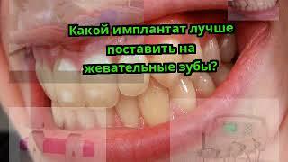 Какой имплантaт лучше поставить на жевательные зубы?