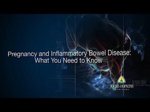 Poliklinika Harni - Upalne bolesti crijeva i trudnoća