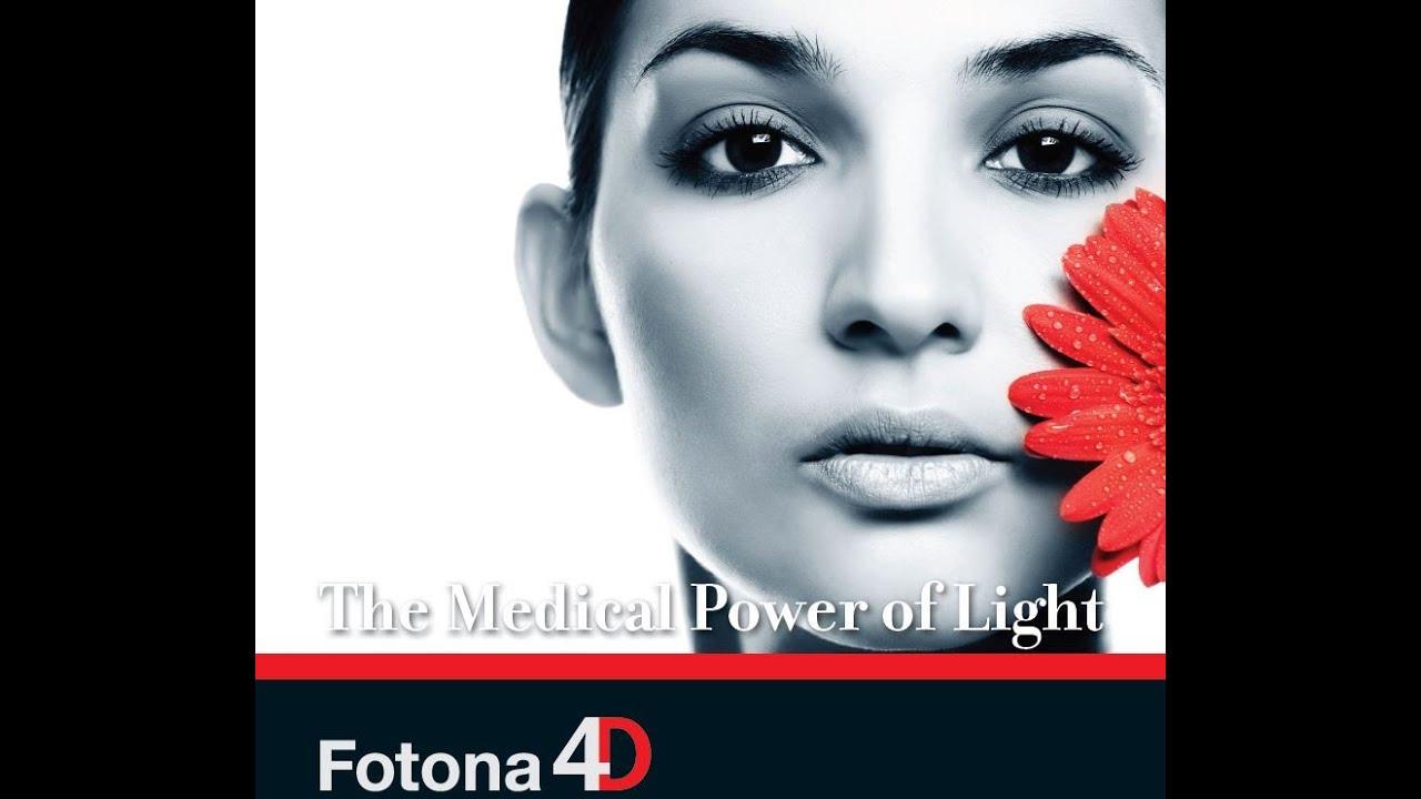 SCCC - Fotona 4D Laser Facelift