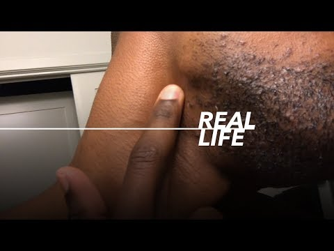 How to make every Ingrown hair go away | Black Men's Skincare Routine