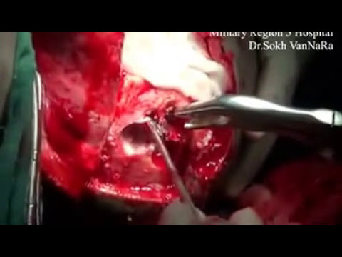 Brain Surgery Blood Clot Removal Of Blood Clot In Brain