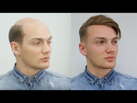 From Baldness to Trend Hairstyle 2017 / Non Surgical Hair Replacement for Men