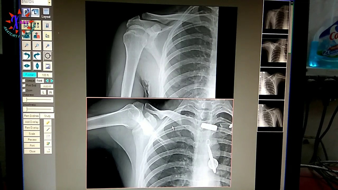 SHOULDER JOINT X-RAY PART - 2.... CONTROVERSY, ANATOMY AND ...