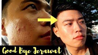 Download Video CARAKU MENGHILANGKAN JERAWAT! MP3 3GP MP4
