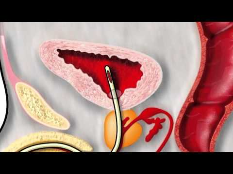 Prostatectomy for an Enlarged Prostate with Urologist Dr. Michael White