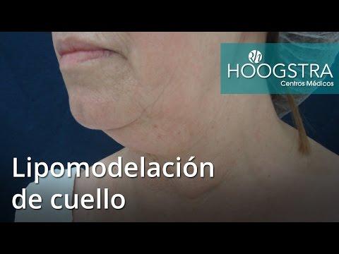 Lipomodelacion de cuello (16169)