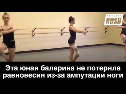 Балерина не потеряла равновесия даже после ампутации ноги