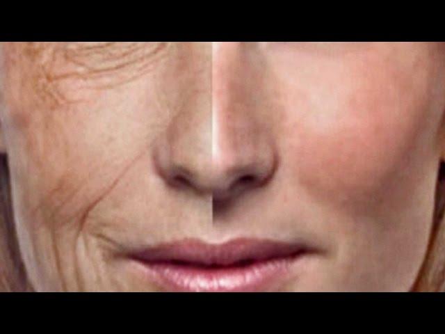 Usa el Huevo CRUDO para quitar arrugas EN 15 minutos