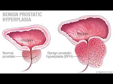 prostate calcification mayo clinic Népi út prosztatitis