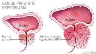 prostate calcification mayo clinic