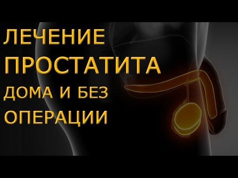 Лечение простатита народными средствами, в домашних условиях