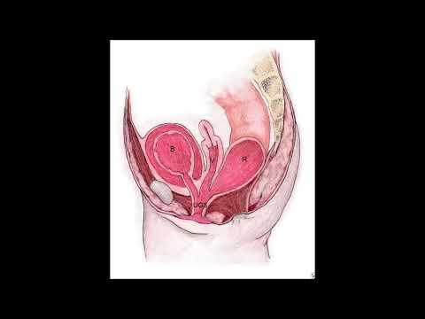 Cloaca  repair, urogenital sinus mobilisation