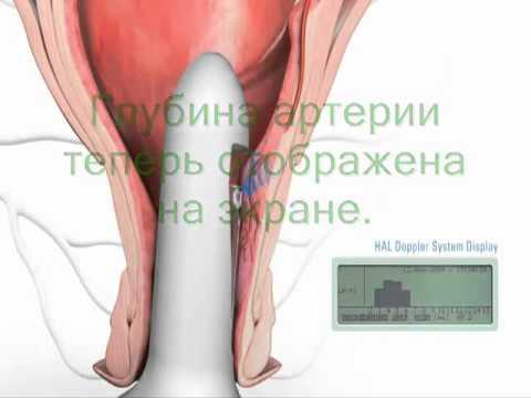 Геморрой - лечение и профилактика, симптомы и признаки