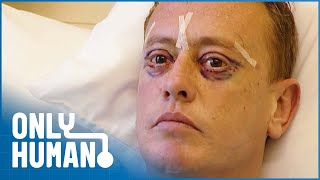 Grant Gets an Eye Lift to Try to Make Himself Look Younger | The Clinic | Only Human