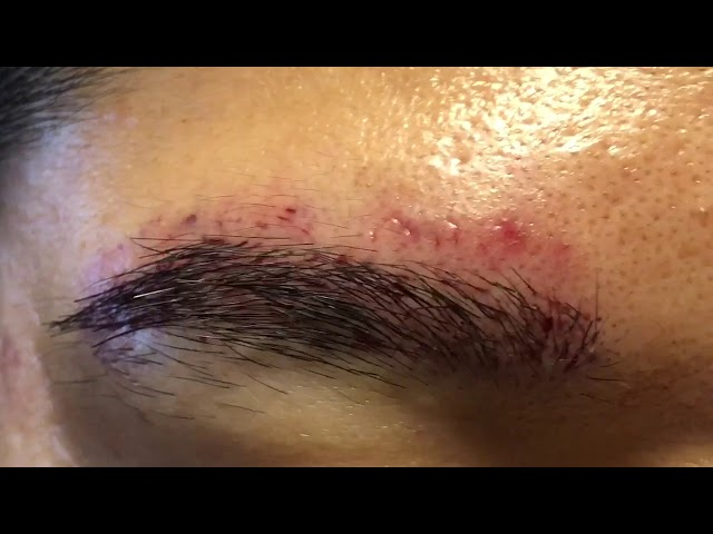 Dallas Asian Male Eyebrow Hair Transplant Immediately After
