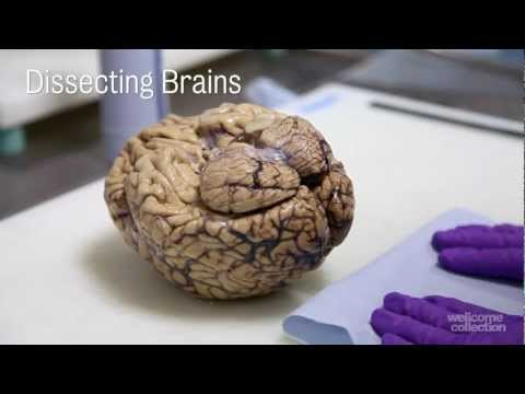 Thumbnail: Dissecting Brains