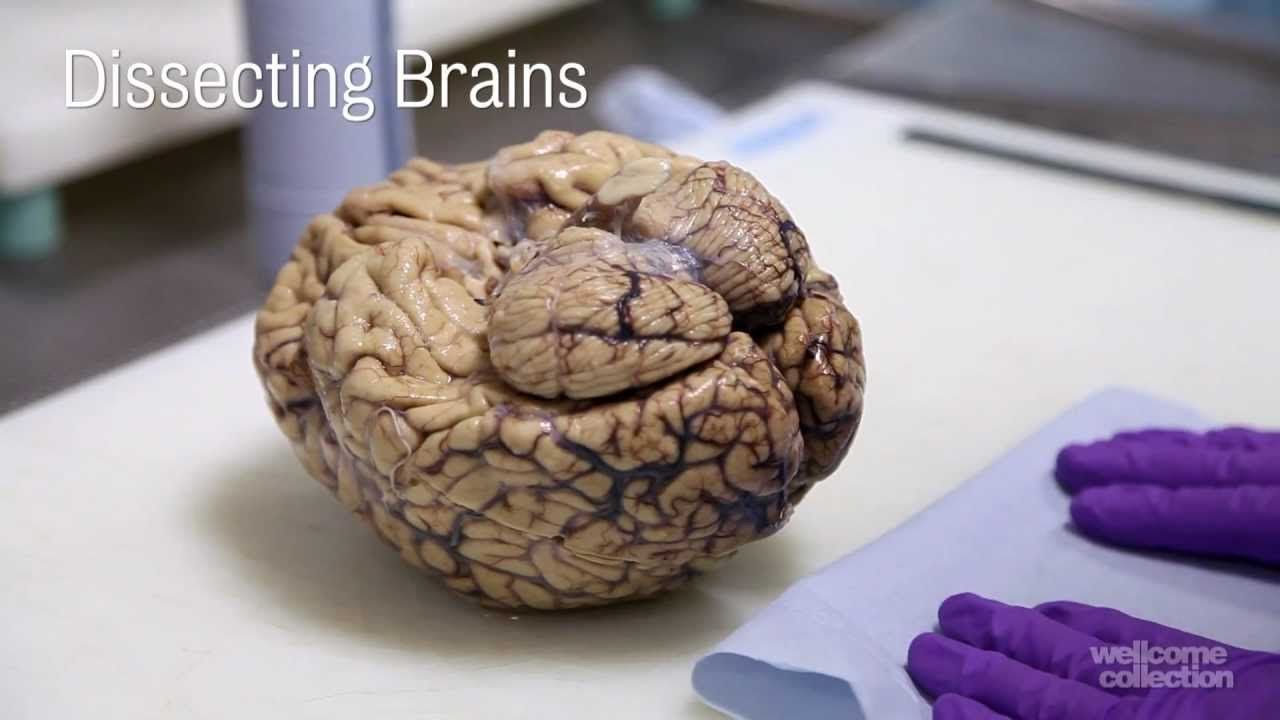 Dissecting Brains Youtube