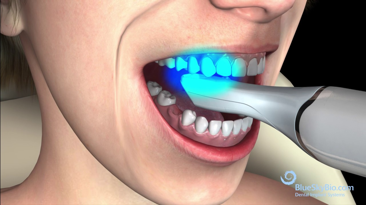 Digital Abutment » Shop Online | Blue Sky Bio