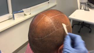 EASY TCA® PAIN CONTROL at Dameto Clinics Scalp preparation before hair restoration