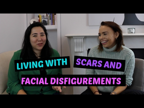 View living with facial disfigurement shit