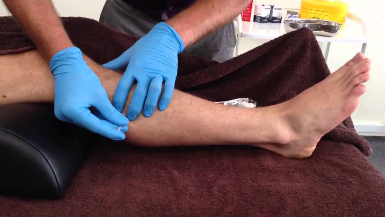Dry Needling Peroneus Longus Brevis Youtube