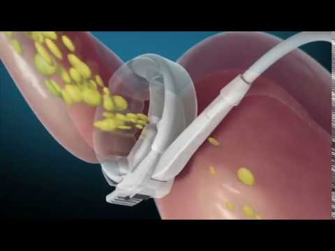 Bariatric Surgery - Gastric Banding video thumbnail