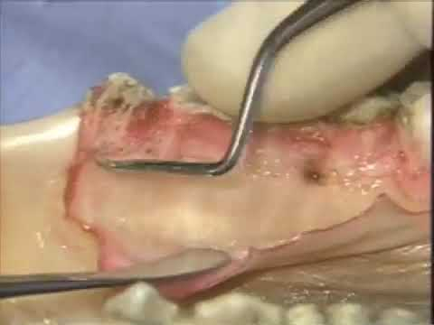 Introductory Periodontal Surgical Techniques: The Apically Positioned Flap and Crown Lengthening