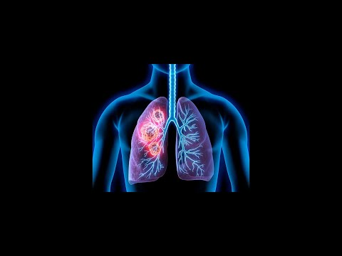 New Treatments For Lung Cancer Stem Cells And Hifu 2018