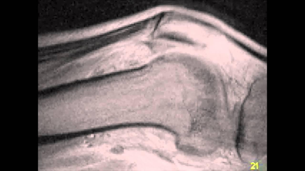 Motion MSK MRI: High Resolution Knee Cine - YouTube