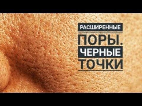 Жирная кожа, расширенные поры, черные точки. Маска для жирной кожи.
