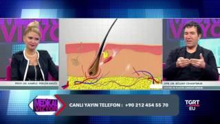 Organik Saç Ekimi (Medikal Vizyon Programı - Op. Dr. Bülent Cihantimur)
