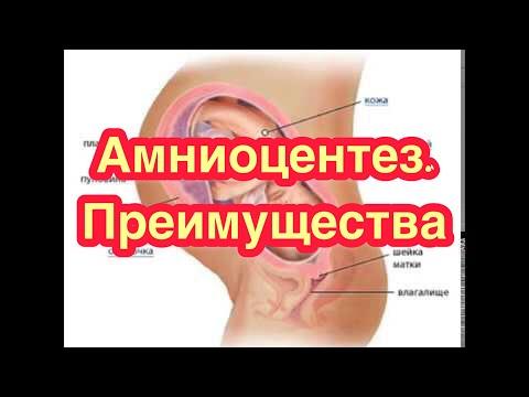 Амниоцентез - вид исследования во время беременности. Преимущества амниоцентеза