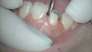 Tooth preparation for All-ceramic crown(, 2010-07-30T22:35:33.000Z)