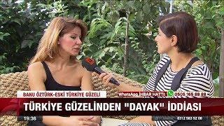 """Türkiye güzelinden """" Dayak"""" iddası 30 Ağustos 2017"""