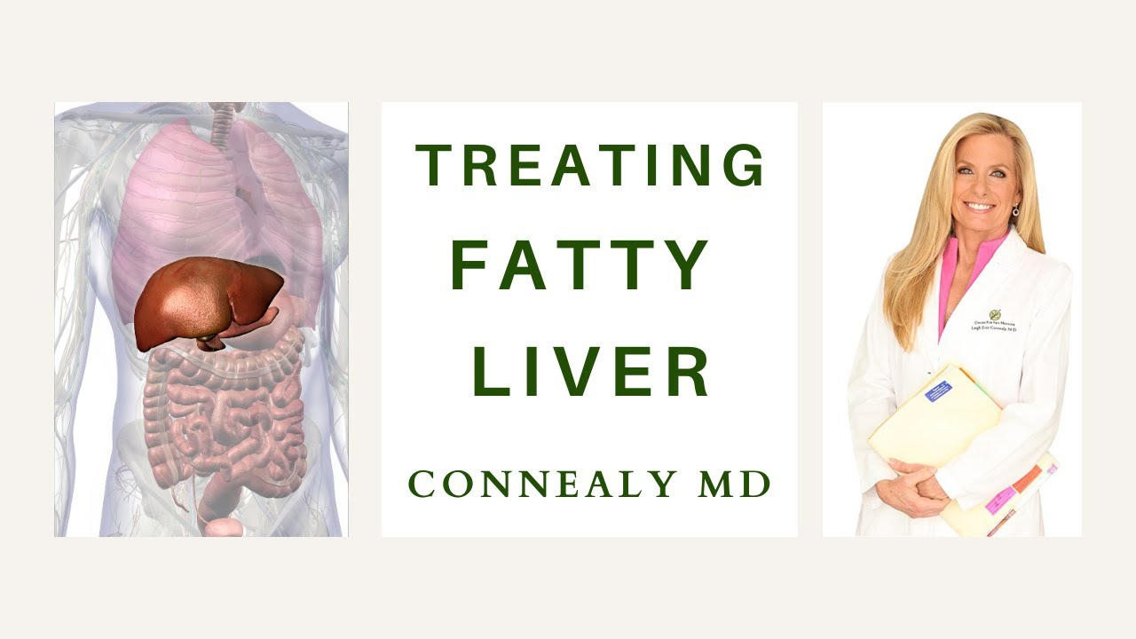 How to Treat Fatty Liver