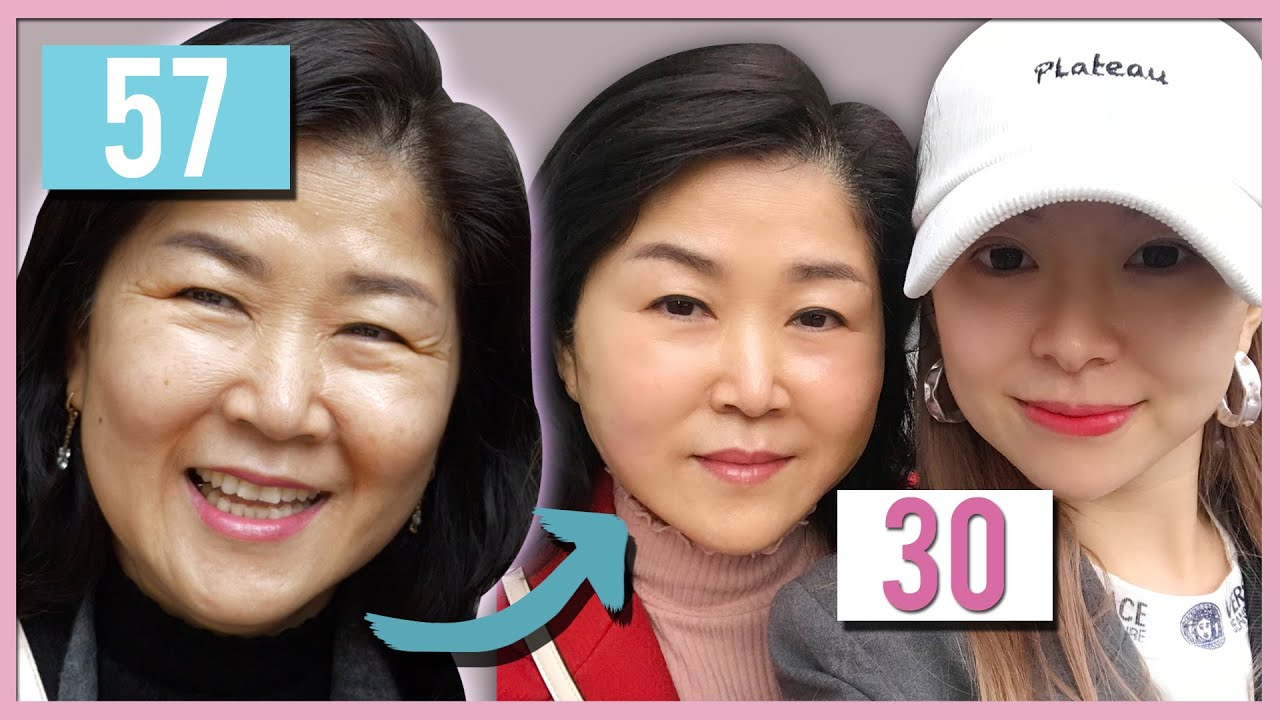 My mom got a new face with thread lift in Korea│Seoul Guide Medical