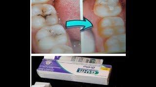 وصفة لازالة تسوس الاسنان والجير المتراكم ومعجون الاسنان الرائع الذي استعمل